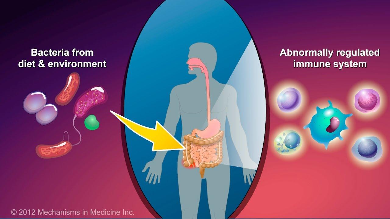 Crohn's disease: The symptoms and signs