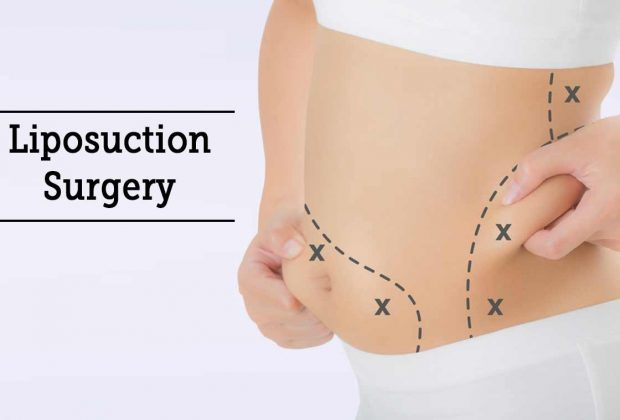 Would you consider getting liposculpture? Does it really work?
